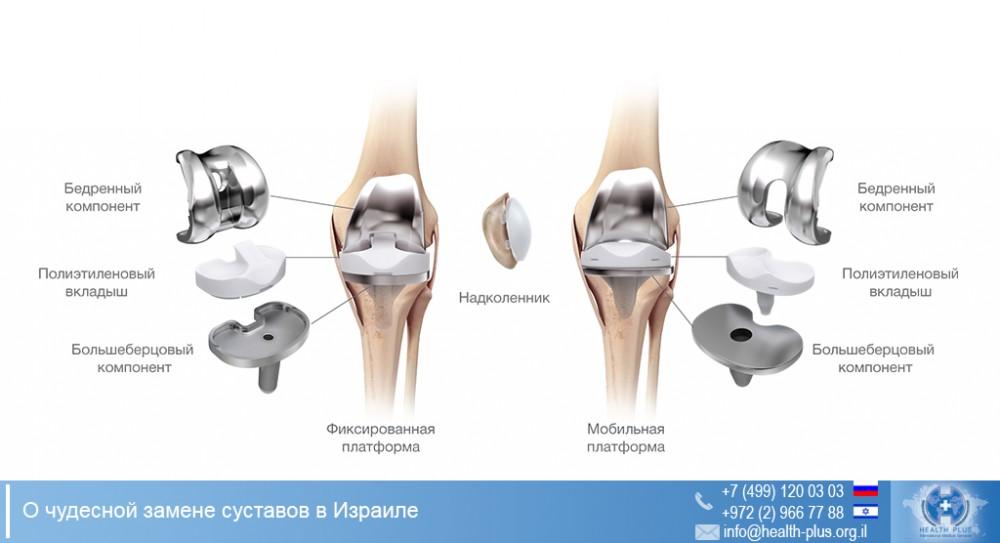 замена тазобедренного сустава отзывы уфа